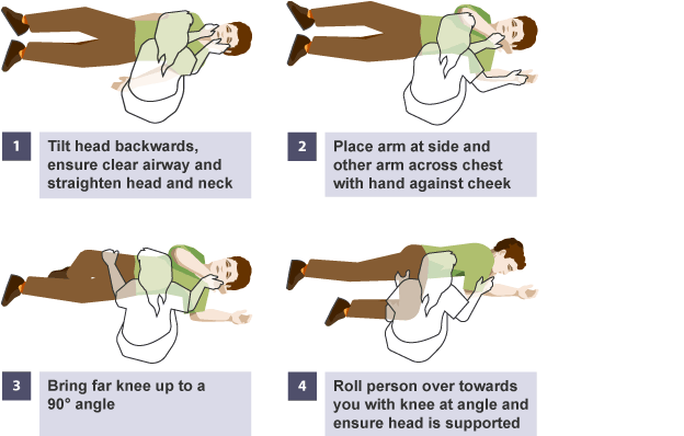The Recovery Position. 1) Tilt the head backwards, ensure clear airway and straighten head and neck. 2) Place arm at side and other arm acress chest with hand against cheek. 3) Bring knee up to a 90 degree angle. 4) Roll person over toward you with knee at angle and endure head is supported.